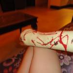 Моя поломанная рука в Гоа